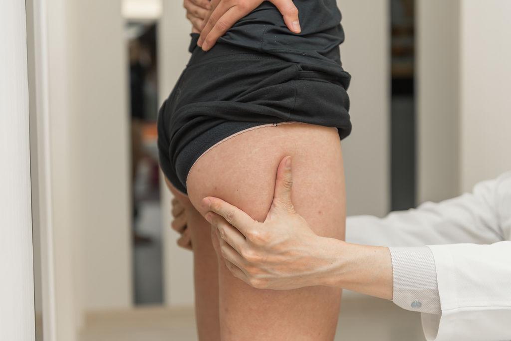 抽脂手術風險抽脂價格抽脂後遺症抽脂日記抽脂會痛嗎抽脂減肥抽脂原理04.jpg