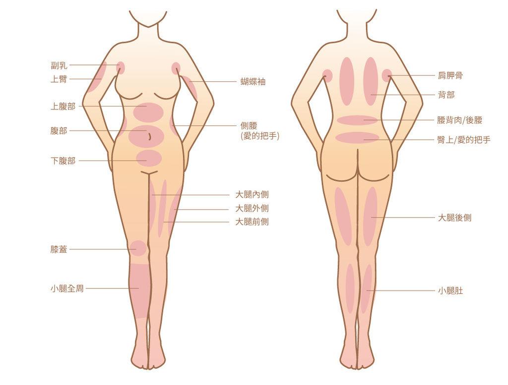抽脂手術風險抽脂價格抽脂後遺症抽脂日記抽脂會痛嗎抽脂減肥抽脂原理02.jpg