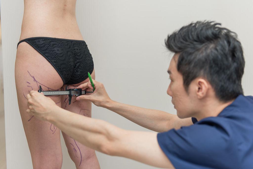 抽脂減肥抽脂價格抽脂後遺症抽脂日記抽脂手術風險腹部抽脂費用04.jpg