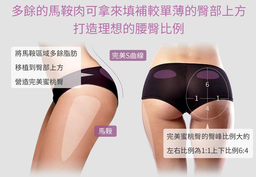 臀部抽脂抽脂手術風險抽脂價格抽脂後遺症抽脂日記抽脂會痛嗎02.jpg