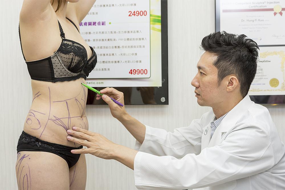 腹部抽脂S曲線光彩時尚診所郭弘義醫師術前評估腹部還抽.jpg