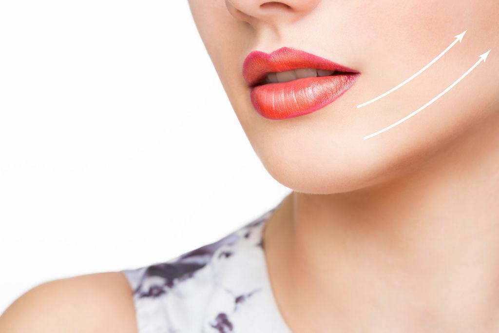埋線拉提費用中醫埋線拉提雙下巴醫美雙下巴拉提雙下巴運動下顎線拉提下顎線輪廓線臉部埋線費用.jpg