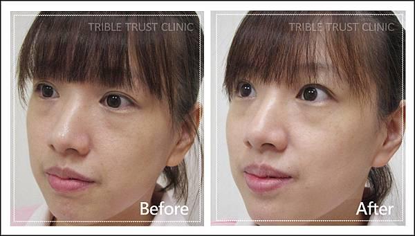 脈衝光+肉毒前後(側臉)