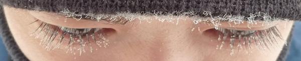 眼睫毛結冰 part 1 近照