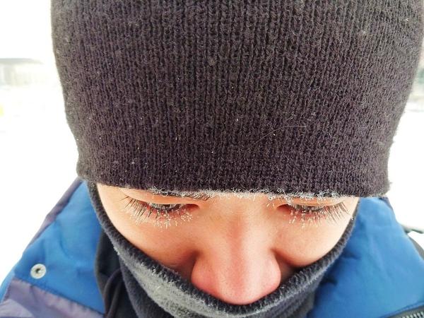 眼睫毛結冰 part 1