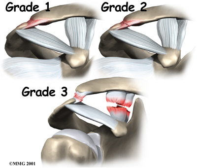 shoulder_acromioclavicular_separation_anat04.jpg