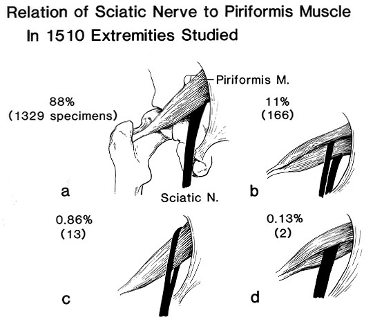 piriformis-sciatic-nerve-variations.jpg