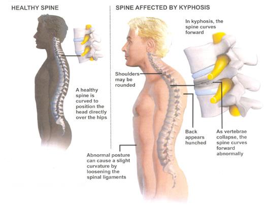 scheuermanns-kyphosis.jpg