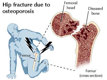 osteoporosis-hip-fracture-lyme-disease.jpg
