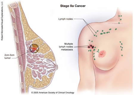 breast_cancer_stage_2a_picture.jpg