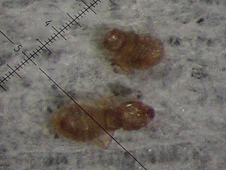 顯微鏡下的囓蟲-2 (體長不到 1 mm).jpg