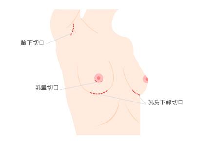 隆乳6.jpg