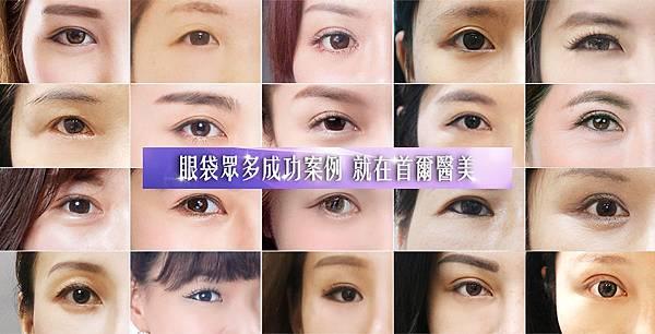 為什麼會有眼袋或淚溝?眼袋成因可分為先天性及後天性,先天性眼袋多為遺傳,天生眼下脂肪肥厚;後天性眼袋多因老化、用眼過度、眼周長期拉扯等,導致眼眶周圍的支撐筋膜組織鬆弛、進而產生皺紋,或因眼眶下緣皮下脂肪位移、萎縮,加上筋膜組織的拉扯而形成淚溝。