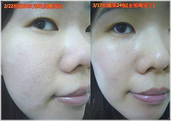 皮膚使用前後