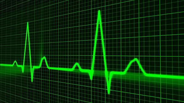 heart-cardiogram
