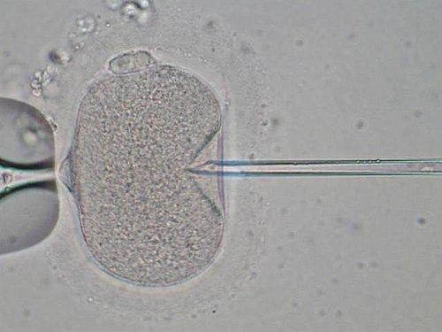 022-單一精虫顯微授精.jpg