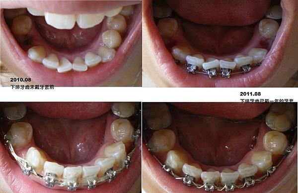 下排牙齒.jpg