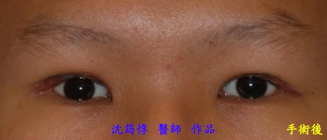 重修雙眼皮手術-作者沈筠惇