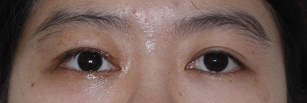 眼瞼下垂治療-額部肌肉皮瓣