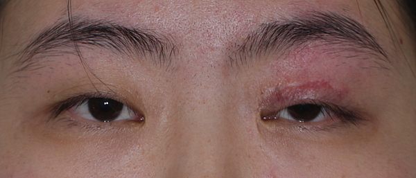 眼整形/提眼肌手術-作者沈筠惇