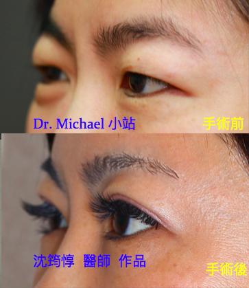 眼整形/雙眼皮手術-作者沈筠惇