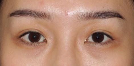 眼窩脂肪轉位眼整形 x 自體脂肪移植-作者沈筠惇