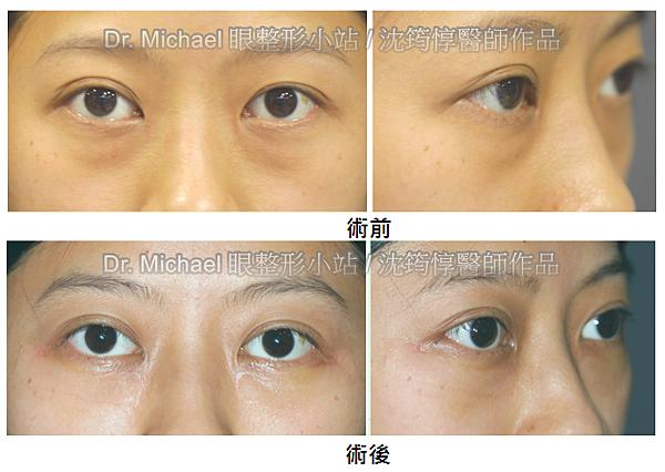 眼袋內開的經典手術:眼窩脂肪轉位-作者沈筠惇