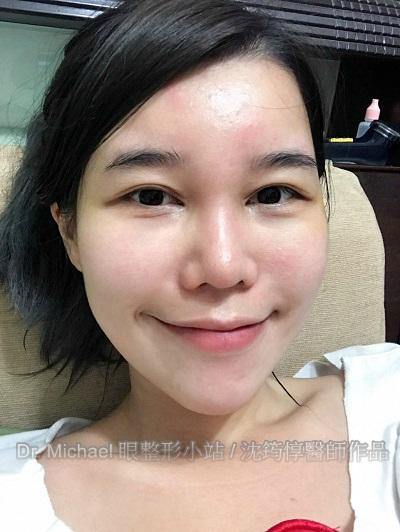 眼整形 x 自體脂肪移植-作者沈筠惇