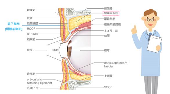 眉下脂肪移除+開放式雙眼皮手術-作者沈筠惇醫師