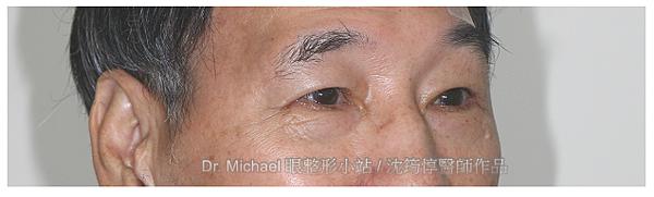 開眼尾矯正X提眼肌改善-作者沈筠惇醫師