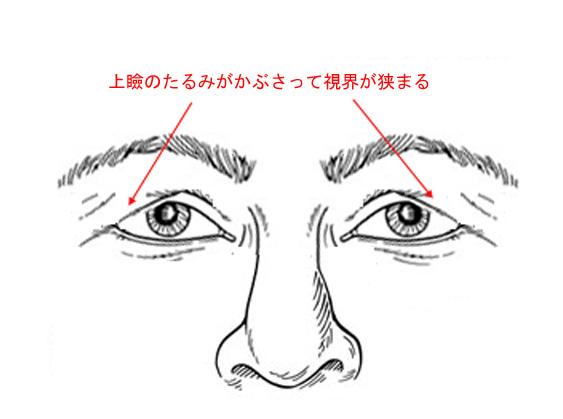【提眼肌/雙眼皮】誰都可以選擇老的很優雅!~談中老年人的提眼肌的雙眼皮手術之一(作者:沈筠惇醫師)