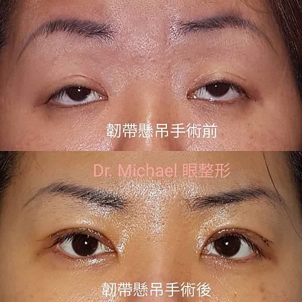 眼窩韌帶懸吊系統 / 重度上眼瞼下垂(作者:Dr.Michael 沈筠惇醫師)