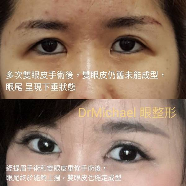 【雙眼皮重修】雙眼皮重修案例:眼尾下垂改善,穩定雙眼皮折線(作者:DrMichael 沈筠惇醫師)