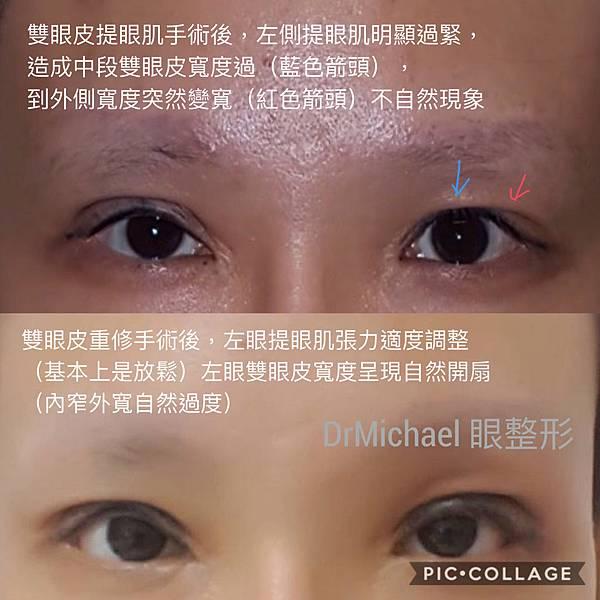 【雙眼皮重修】雙眼皮重修案例:提眼肌過度緊張力調整-作者沈筠惇