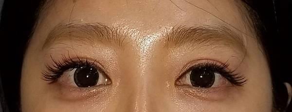 【雙眼皮重修】雙眼皮重修案例:改善肉條感和泡泡眼(作者:DrMichael 沈筠惇醫師)