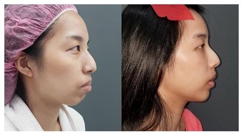 【自體脂肪移植/自體脂肪臉部填補】沈筠惇醫師談如何運用自體脂肪臉部填補 重新雕塑精緻輪廓線條
