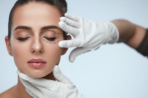 【雙眼皮手術修復/重修/微調】沈筠惇醫師談雙眼皮手術修復各階段 以及是否有重修與微調必要性