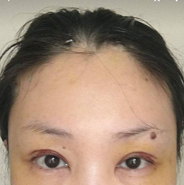 【提眉手術/眼尾拉】提眉手術案例分享(眼尾拉提)-作者沈筠惇
