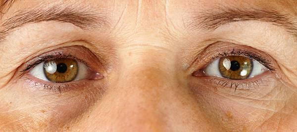眼尾下垂一定要開雙眼皮?眼袋一定要開眼袋手術嗎?看看內視鏡拉皮(上臉/中臉)能達到什麼效果