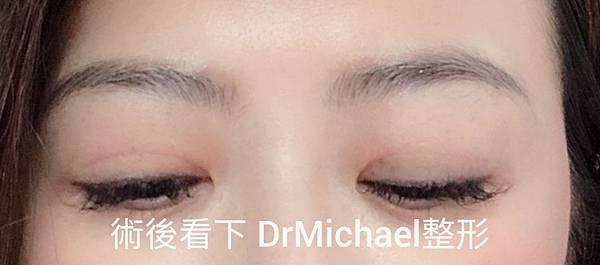 到底什麼是眼睛修復醫師口中常說的『沾黏』,跟雙眼皮修復重修有什麼關係?─DrMichael整形 沈筠惇醫師