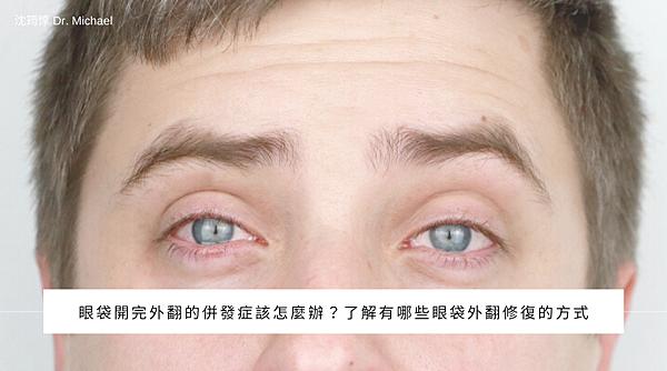 眼袋開完外翻的併發症該怎麼辦?了解有哪些眼袋外翻修復的方式.png