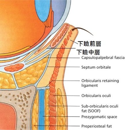眼袋開完外翻的併發症該怎麼辦?了解有哪些眼袋外翻修復的方式