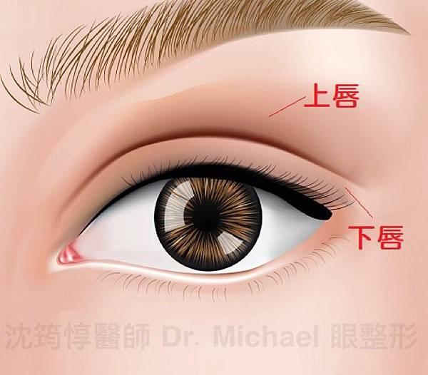 割雙眼皮快速消腫有方法?淺談保留血管網的眼皮手術方式是否可行9 (1)