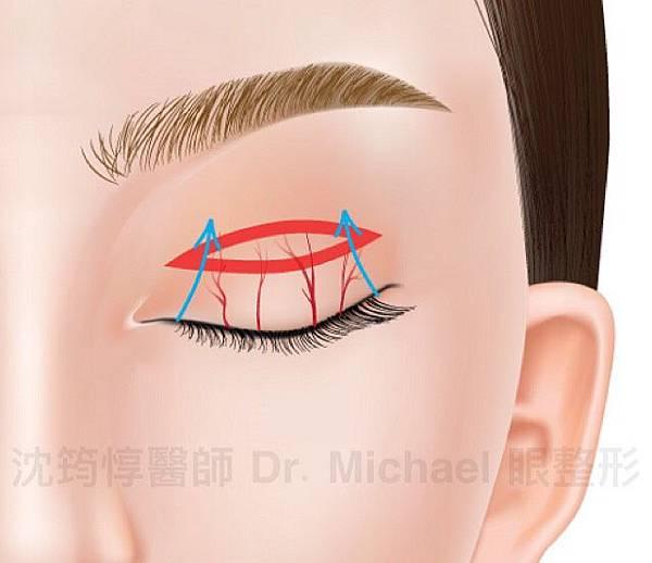割雙眼皮快速消腫有方法?淺談保留血管網的眼皮手術方式是否可行9 (2)