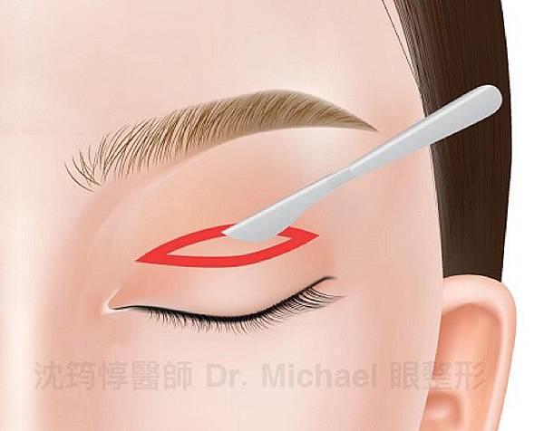 割雙眼皮快速消腫有方法?淺談保留血管網的眼皮手術方式是否可行7