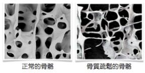 bone-architecture-2