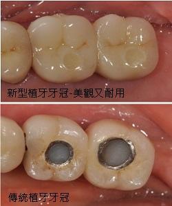 植牙新型牙冠