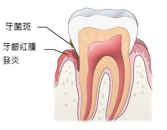 圖一、牙菌斑是造成牙周病主要原因