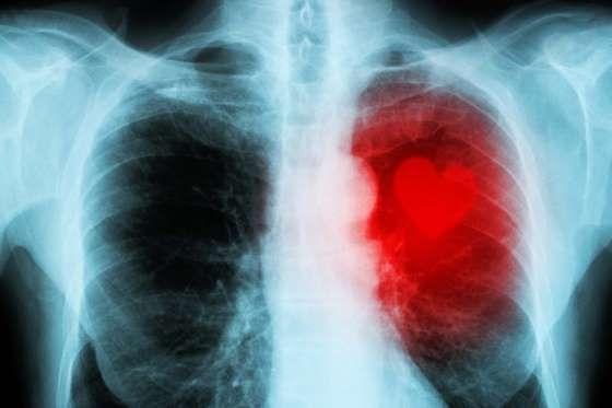圖二、牙周病患罹患心血管疾病的機率比一般人高2-4倍