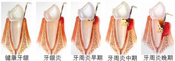 圖三、牙周病早期至晚期的發展,可以看到齒槽骨逐漸流失